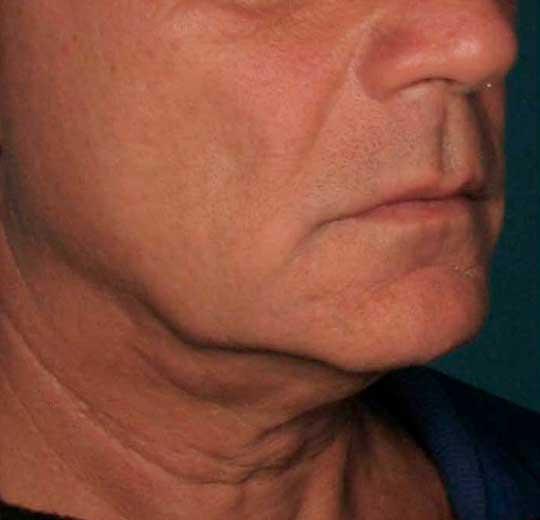 Результаты проведения процедуры на косметологическом аппарате HIFU U-ONE