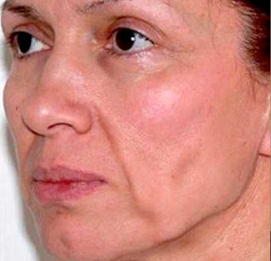Результаты проведения процедуры на косметологическом аппарате Ultraformer