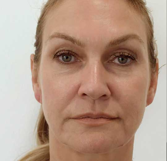 Результаты проведения процедуры на косметологическом аппарате HIFU HS 500