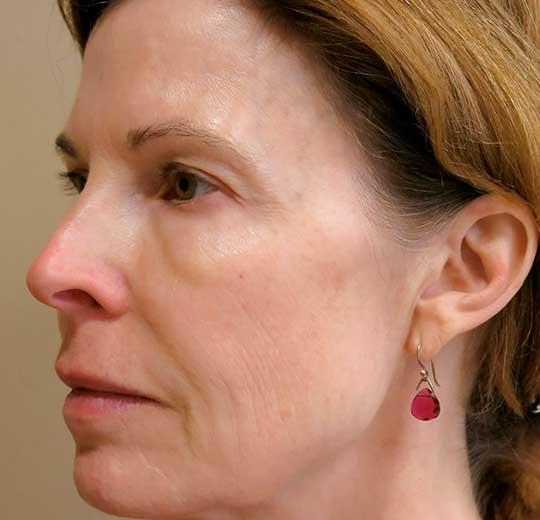 Результаты проведения процедуры на косметологическом аппарате Ювента