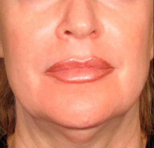 Результаты проведения процедуры на косметологическом аппарате ULTRA SMAS