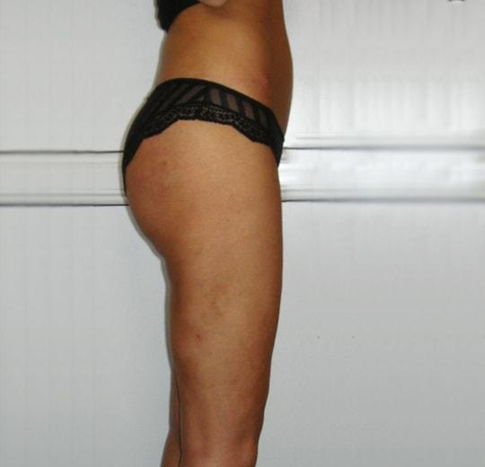 Результаты проведения процедуры на косметологическом аппарате KES
