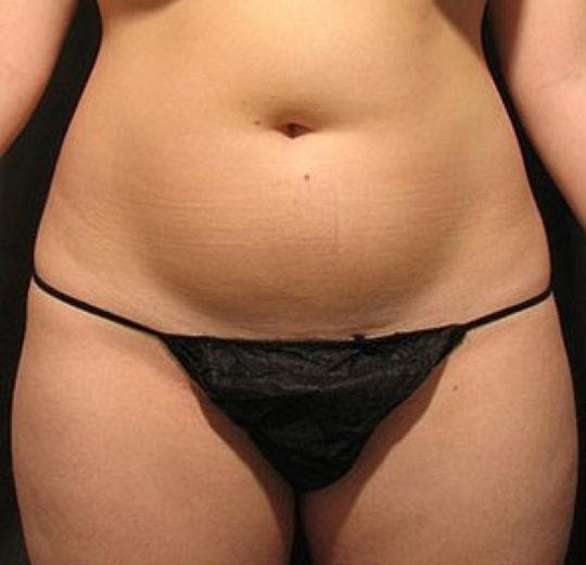 Результаты проведения процедуры на косметологическом аппарате LPG LIPO M6