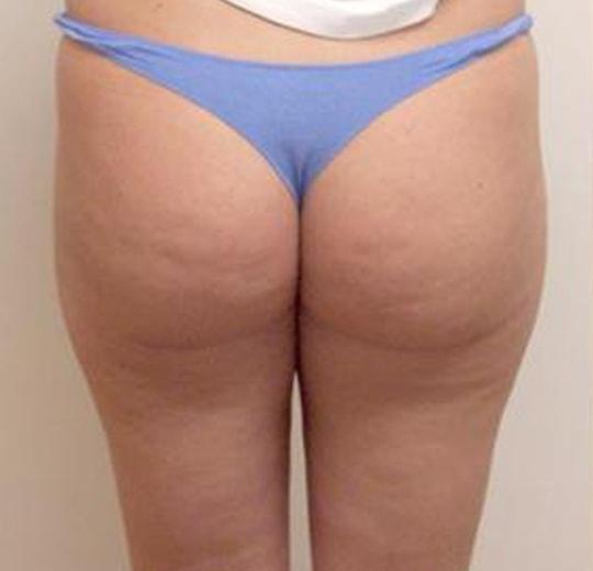 Результаты проведения процедуры на косметологическом аппарате VelaShape II