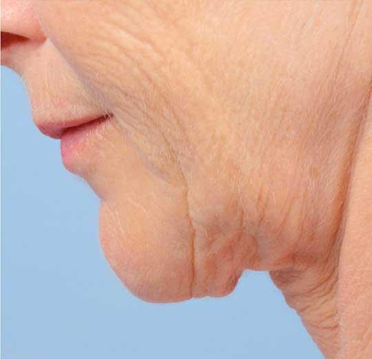 Результаты проведения процедуры на косметологическом аппарате MABEL PLUS