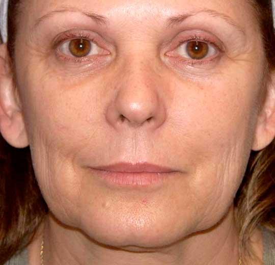 Результаты проведения процедуры на косметологическом аппарате NovaEYES