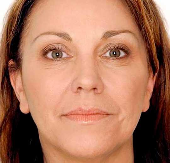 Результаты проведения процедуры на косметологическом аппарате NV I3