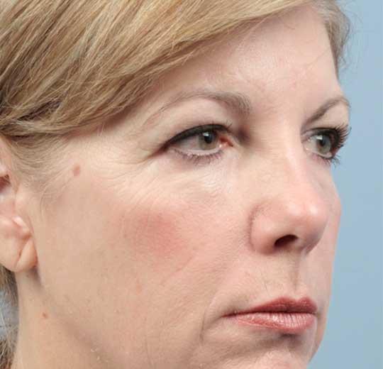 Результаты проведения процедуры на косметологическом аппарате Melody