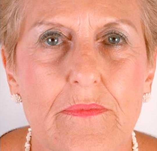 Результаты проведения процедуры на косметологическом аппарате 4D Micros