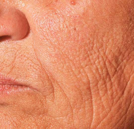 Результаты проведения процедуры на косметологическом аппарате RotaryPress