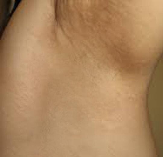 Полезное лечебное воздействие на организм аппарата Anchorfree