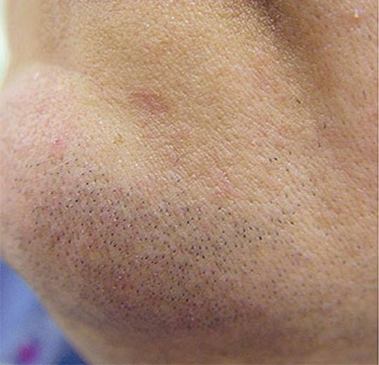 Результаты проведения процедуры на косметологическом аппарате MIDEPI