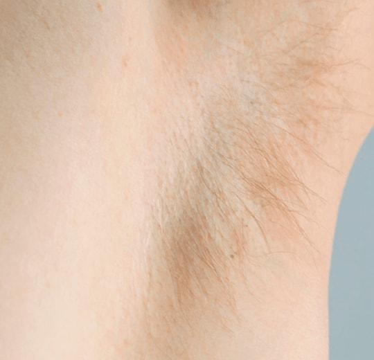 Результаты проведения процедуры на косметологическом аппарате Mozero EVO