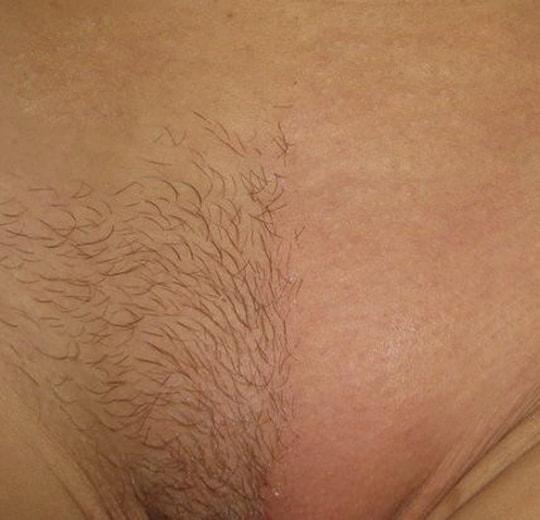 Результаты проведения процедуры на косметологическом аппарате SHR Medusa