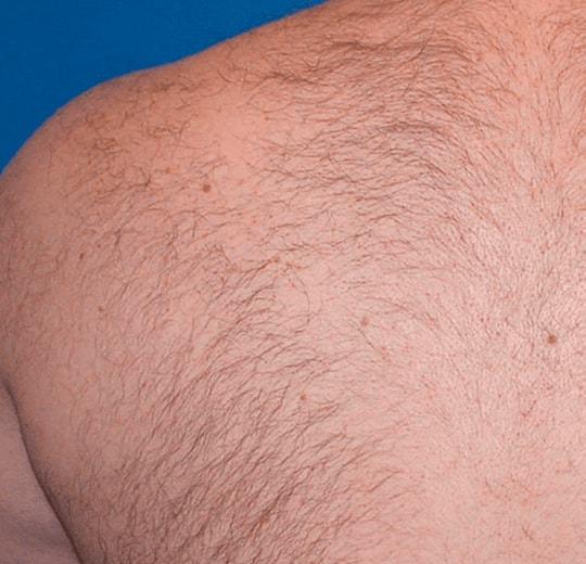 Результаты проведения процедуры на косметологическом аппарате EPILUX