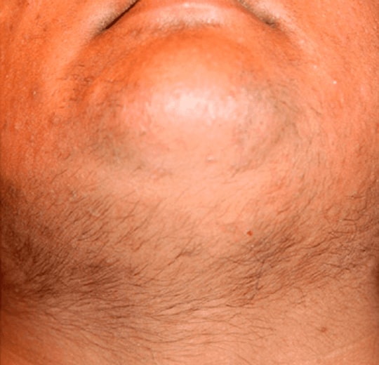 Результаты проведения процедуры на косметологическом аппарате Honkon FL