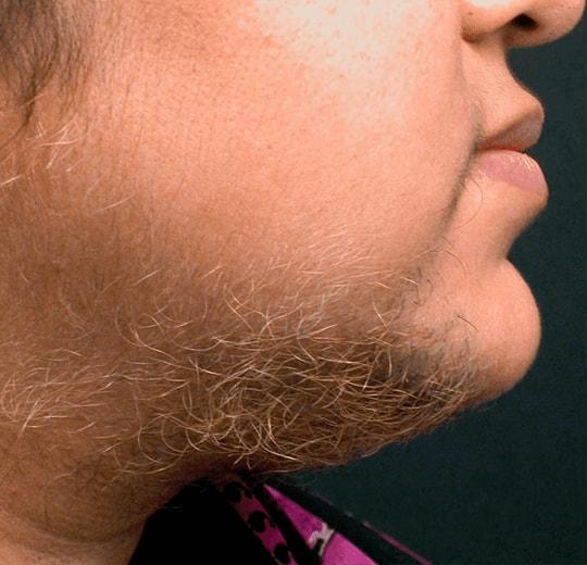 Результаты проведения процедуры на косметологическом аппарате Rineton