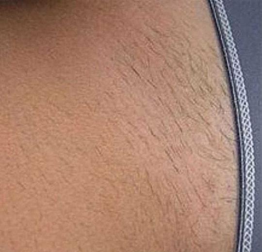 Результаты проведения процедуры на косметологическом аппарате IMED