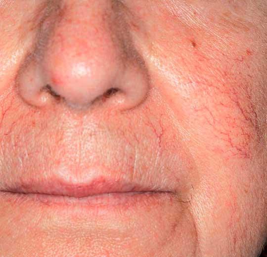 Результаты проведения процедуры на косметологическом аппарате Sinceil
