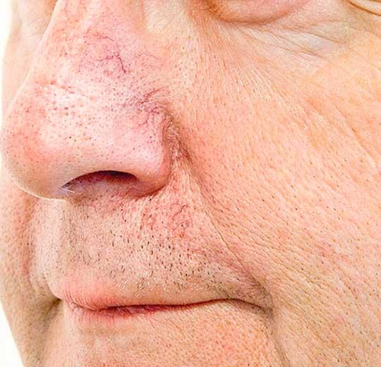 Результаты проведения процедуры на косметологическом аппарате SC Razorlaser
