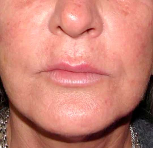 Результаты проведения процедуры на косметологическом аппарате J-Tix