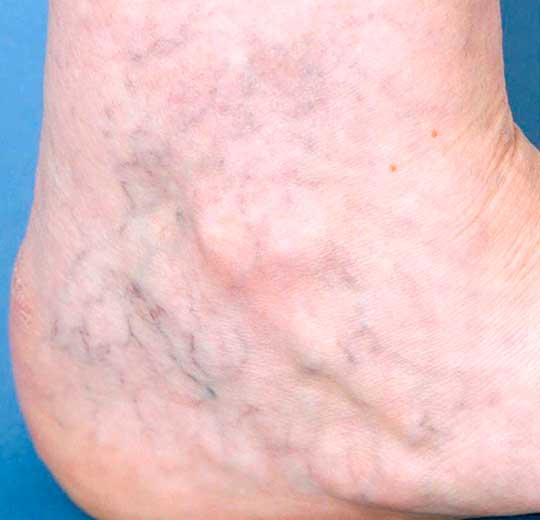 Результаты проведения процедуры на косметологическом аппарате SEVILA II