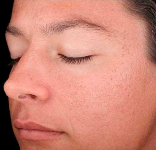 Результаты проведения процедуры на косметологическом аппарате Beauty ErYag