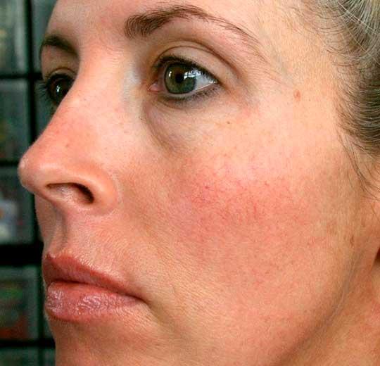 Результаты проведения процедуры на косметологическом аппарате PowerLaz