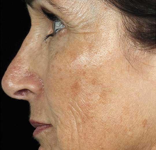 Результаты проведения процедуры на косметологическом аппарате Антей