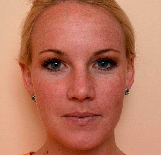 Результаты проведения процедуры на косметологическом аппарате IdealSkine