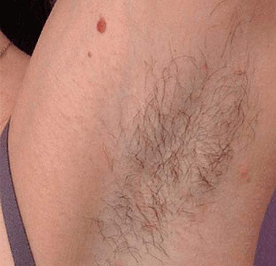 Результаты проведения процедуры на косметологическом аппарате SOROS