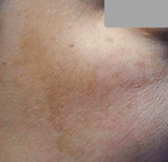 Результаты проведения процедуры на косметологическом аппарате SKINPULSE 900 RF