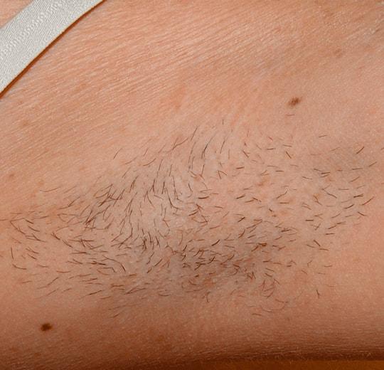 Результаты проведения процедуры на косметологическом аппарате MONA ONE