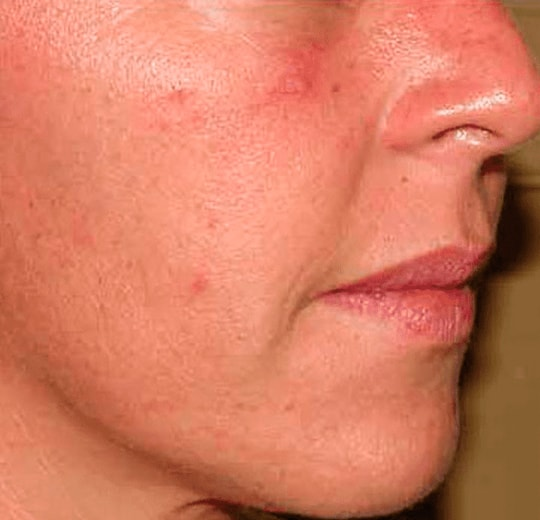 Результаты проведения процедуры на косметологическом аппарате QUEEN