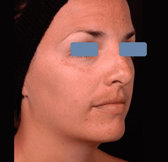 Результаты проведения процедуры на косметологическом аппарате Icons Beauty Elos