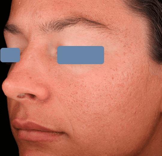 Результаты проведения процедуры на косметологическом аппарате ANGEL 1L PRO