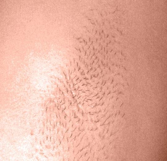 Результаты проведения процедуры на косметологическом аппарате 2S pro