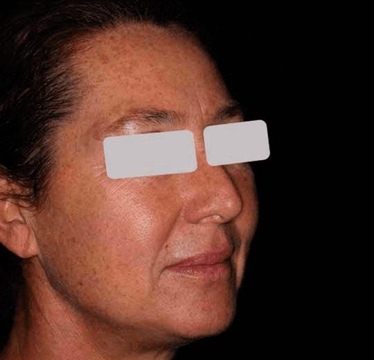 Результаты проведения процедуры на косметологическом аппарате 3S IPLASER