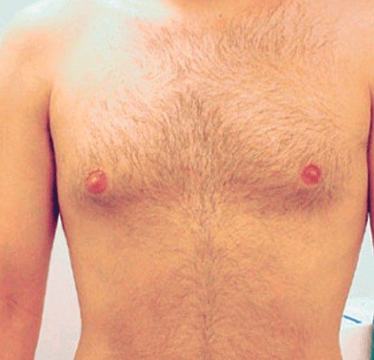 Результаты проведения процедуры на косметологическом аппарате SHR Light