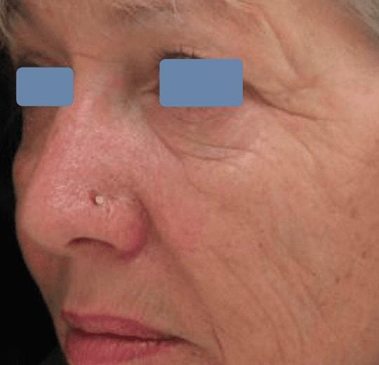 Результаты проведения процедуры на косметологическом аппарате 3S Publis