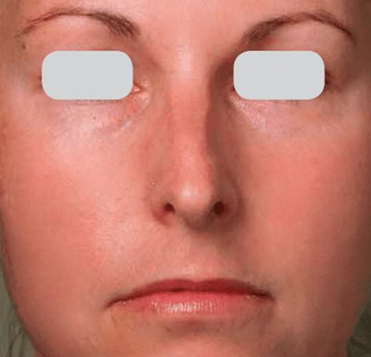 Полезное лечебное воздействие на организм аппарата AQUAPEEL