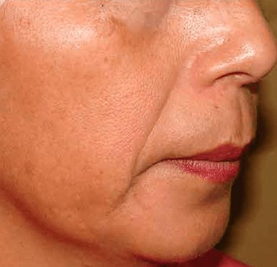 Результаты проведения процедуры на косметологическом аппарате O2 Jet Peel