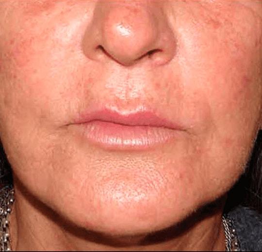 Результаты проведения процедуры на косметологическом аппарате KES 400