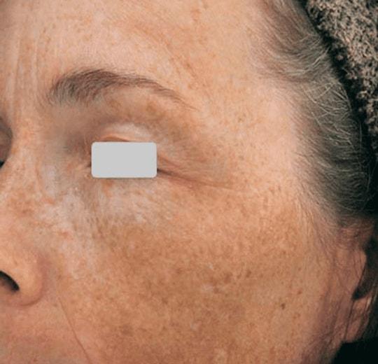 Результаты проведения процедуры на косметологическом аппарате Oxygen Jet Mod