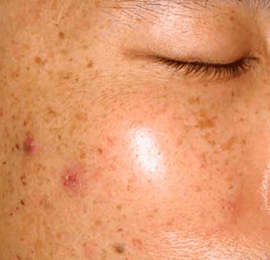 Результаты проведения процедуры на косметологическом аппарате AquaFacial Lux