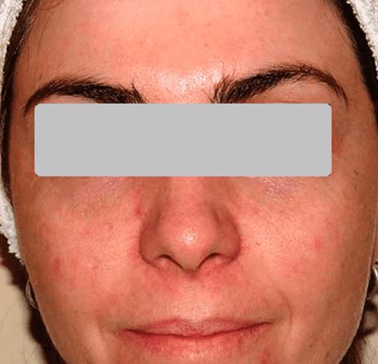 Результаты проведения процедуры на косметологическом аппарате AquaFacial Lite