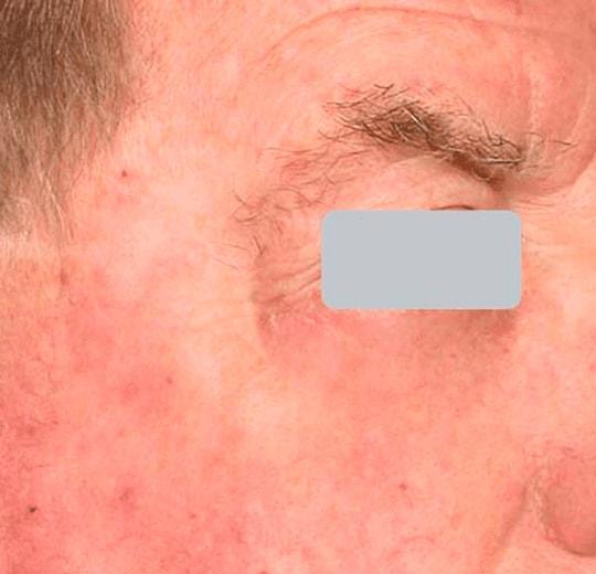 Результаты проведения процедуры на косметологическом аппарате AQUAPEEL