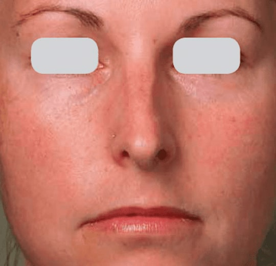Результаты проведения процедуры на косметологическом аппарате PowerPeel