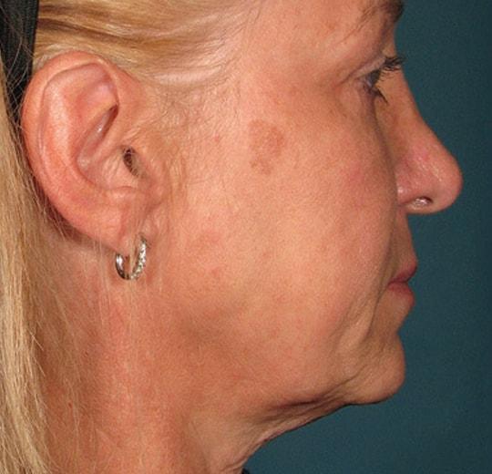 Результаты проведения процедуры на косметологическом аппарате Delly Flay