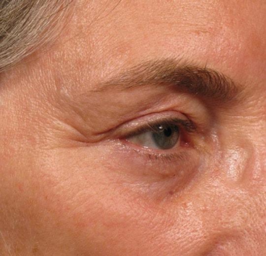 Результаты проведения процедуры на косметологическом аппарате Комбайн Delly Super